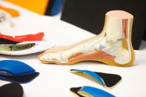 una msuculatura débil provoca undimiento del arco plantar.la sujeción del mismo hasta fortalecer la musculatura es fundamental para un buen movimiento de rodilla.
