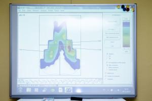 huella de presión en la zona isquiático-púbica con el sistema gebiomized.